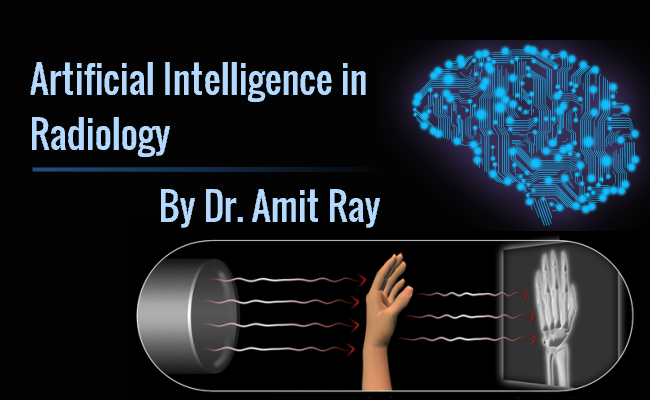 Artificial Intelligence in Radiology for X-Ray and CT-Scan